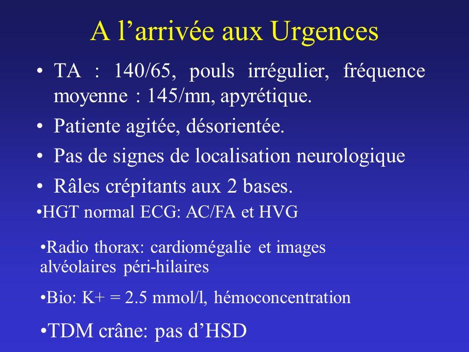 A larrivée aux Urgences TA : 140/65, pouls irrégulier, fréquence moyenne : 145/mn, apyrétique. Patiente agitée, désorientée. Pas de signes de localisa