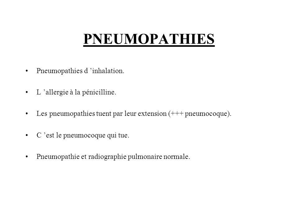 PNEUMOPATHIES Pneumopathies d inhalation. L allergie à la pénicilline. Les pneumopathies tuent par leur extension (+++ pneumocoque). C est le pneumoco