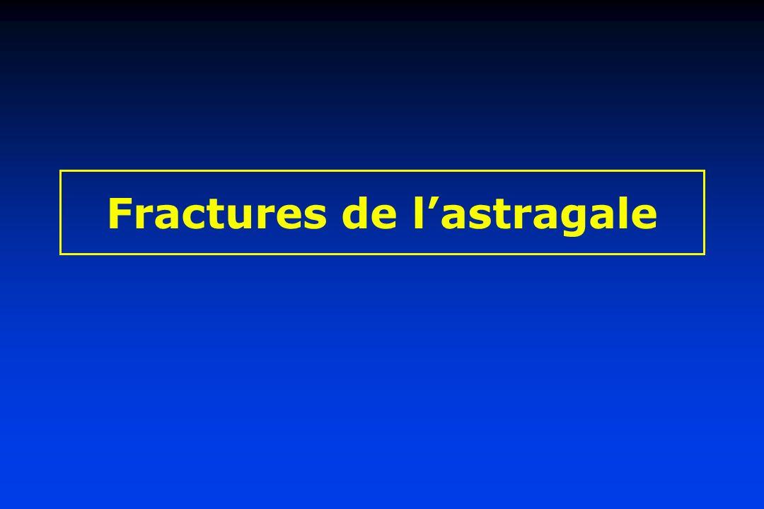 Fractures de lastragale