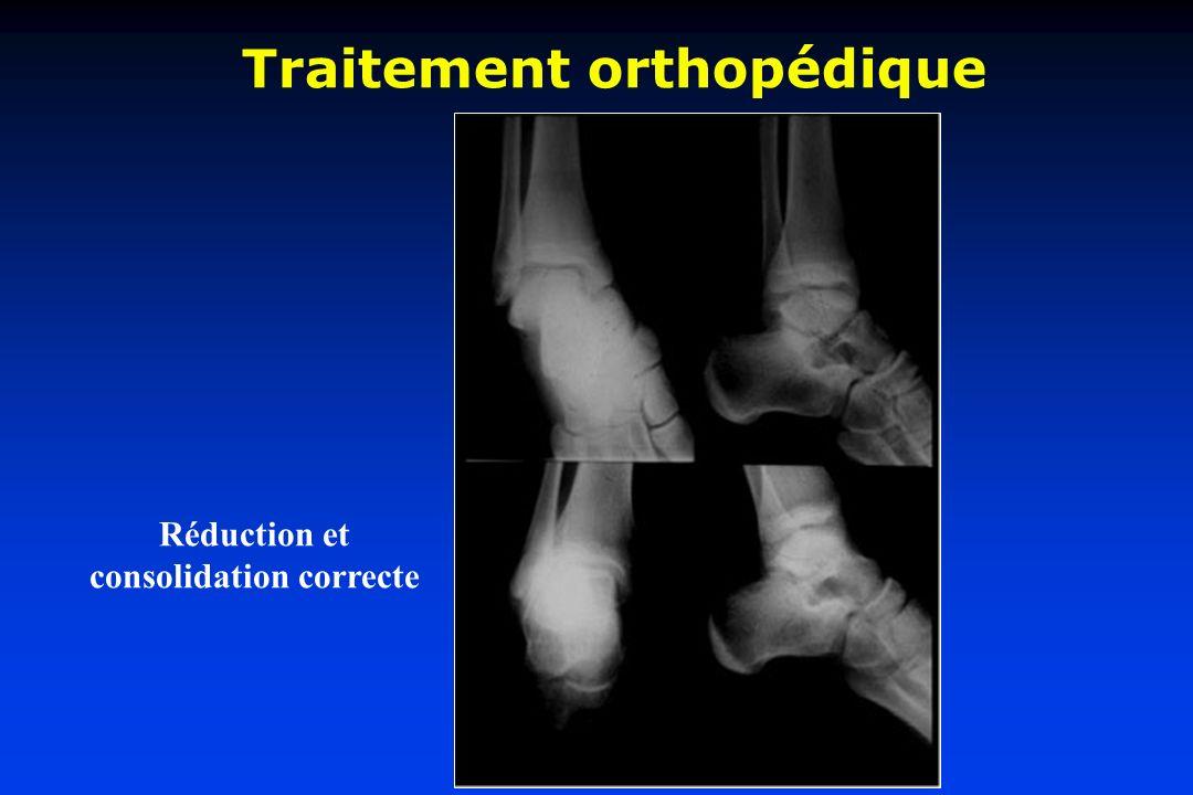 Traitement orthopédique Réduction et consolidation correcte