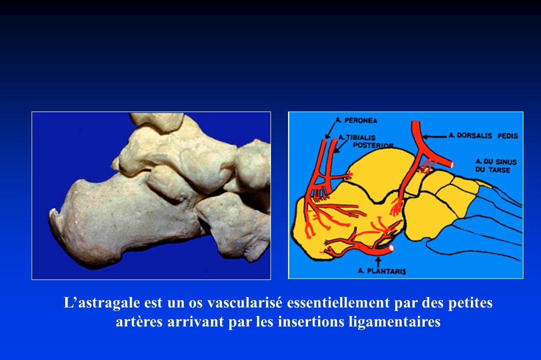 Lastragale est un os vascularisé essentiellement par des petites artères arrivant par les insertions ligamentaires