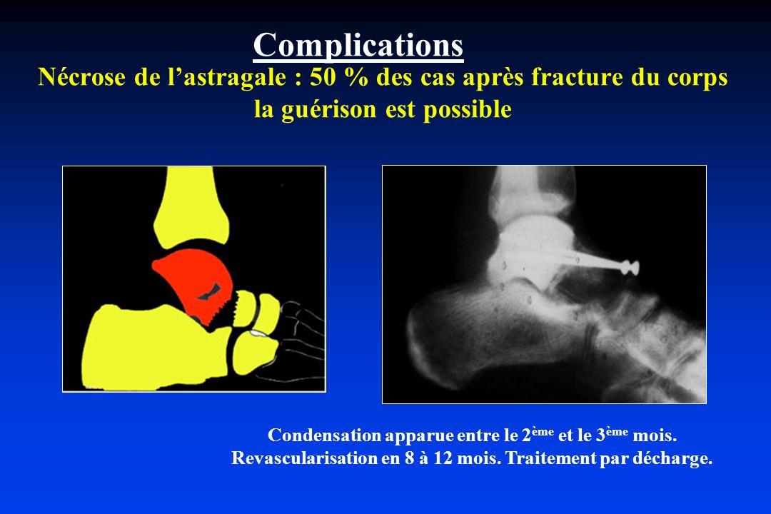 Nécrose de lastragale : 50 % des cas après fracture du corps la guérison est possible Condensation apparue entre le 2 ème et le 3 ème mois. Revascular
