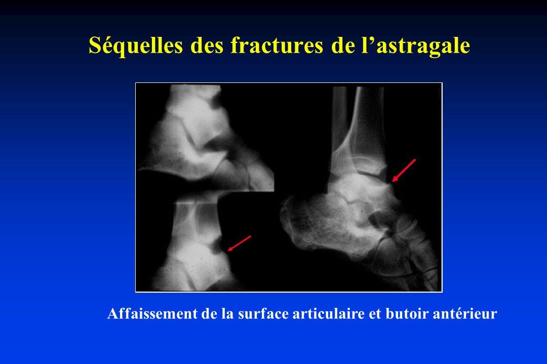 Séquelles des fractures de lastragale Affaissement de la surface articulaire et butoir antérieur