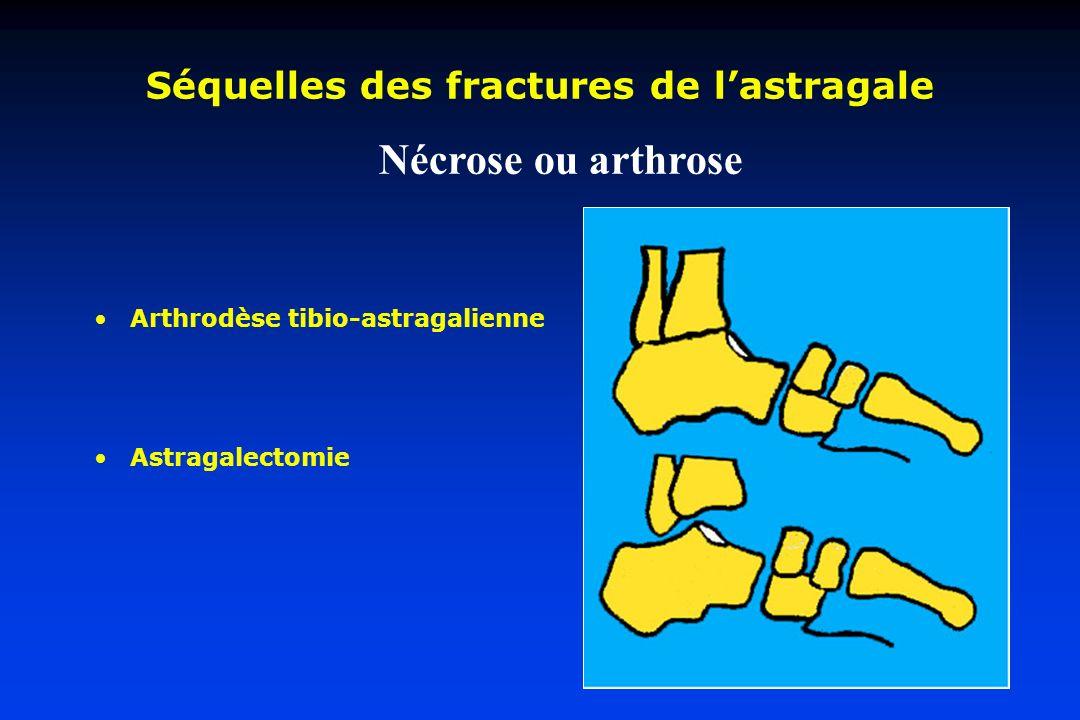 Séquelles des fractures de lastragale Arthrodèse tibio-astragalienne Astragalectomie Nécrose ou arthrose