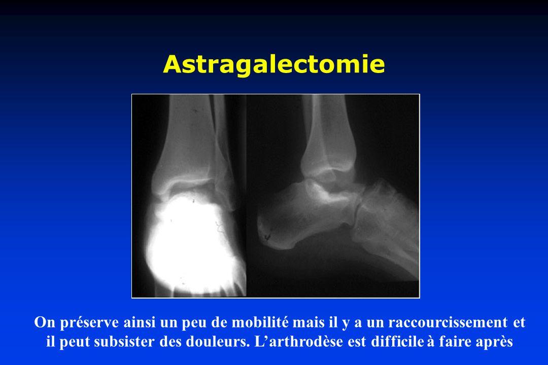 Astragalectomie On préserve ainsi un peu de mobilité mais il y a un raccourcissement et il peut subsister des douleurs. Larthrodèse est difficile à fa