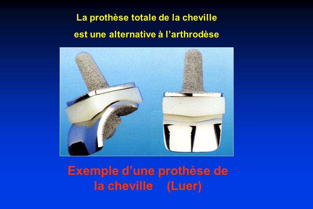 Exemple dune prothèse de la cheville (Luer) La prothèse totale de la cheville est une alternative à larthrodèse