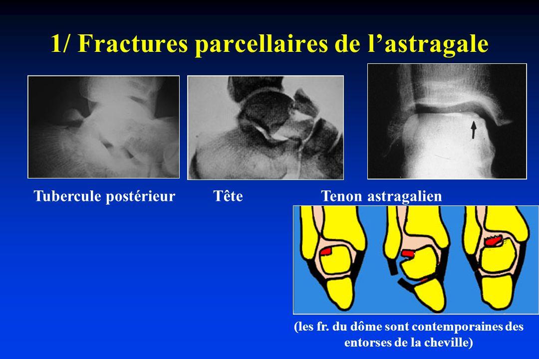 1/ Fractures parcellaires de lastragale Tubercule postérieur Tête Tenon astragalien (les fr. du dôme sont contemporaines des entorses de la cheville)
