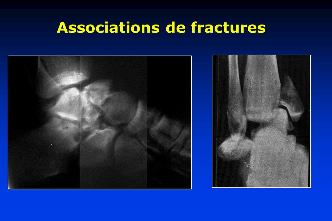 Associations de fractures