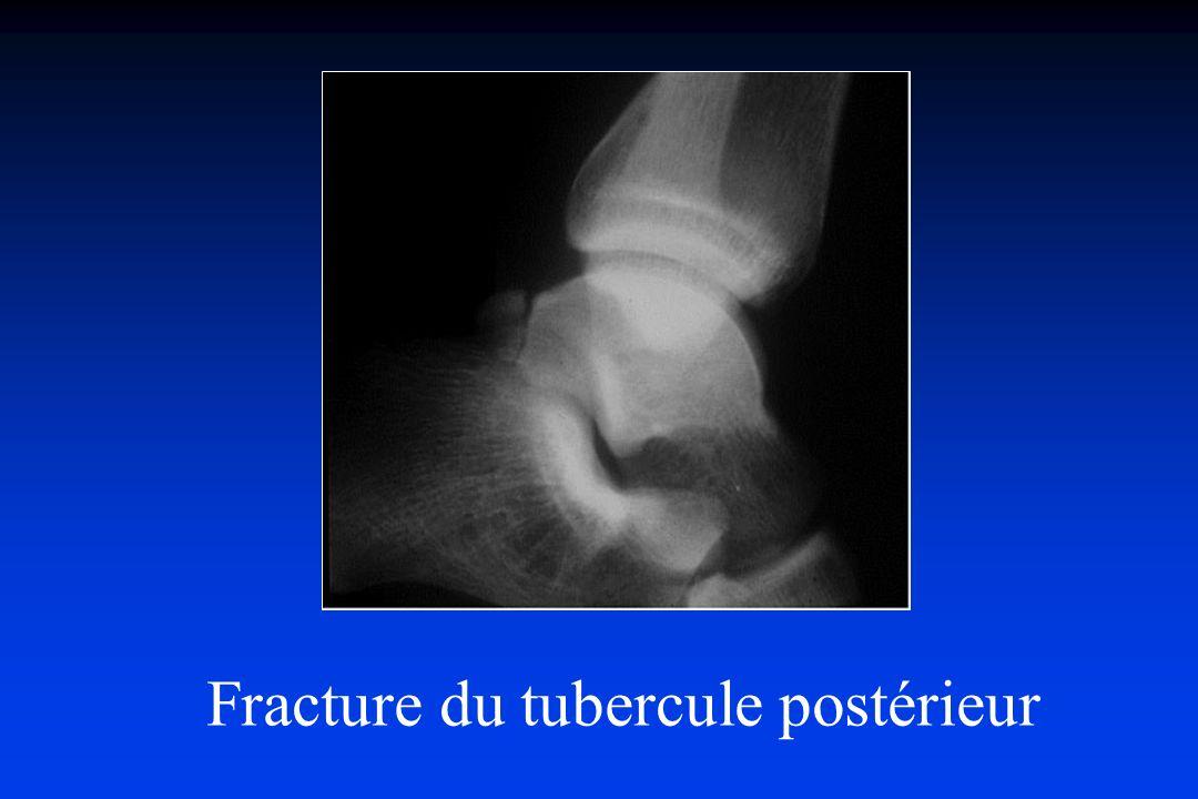 Fracture du tubercule postérieur
