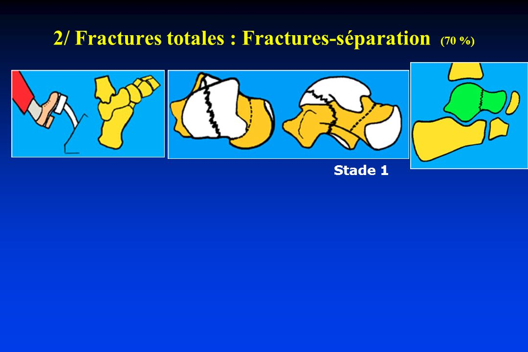 Fractures totales : Fractures-séparation (70 %) Stade 1 Stade 2