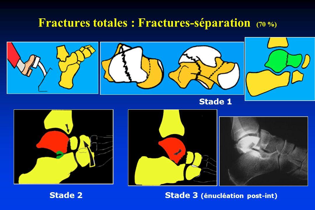 Fractures totales : Fractures-séparation (70 %) Stade 1 Stade 2 Stade 3 (énucléation post-int)