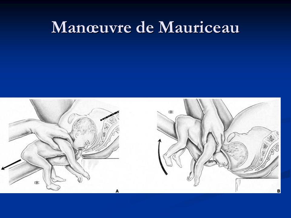 Manœuvre de Mauriceau