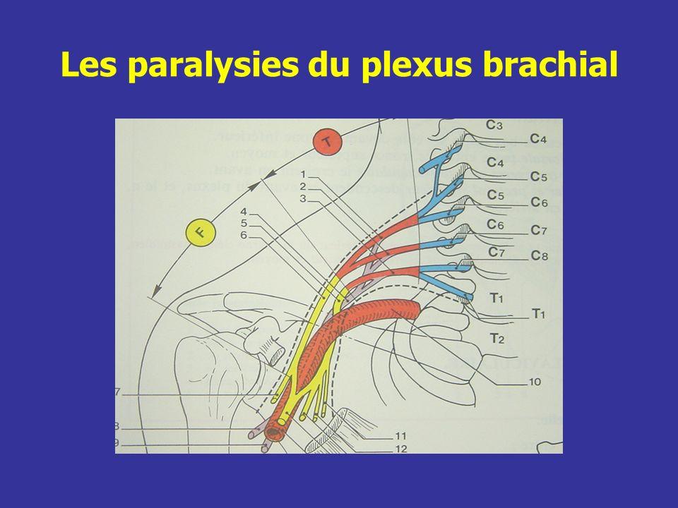 Les paralysies initialement totales correspondent dans limmense majorité des cas à des lésions nerveuses graves (en dehors des luxations dépaule).