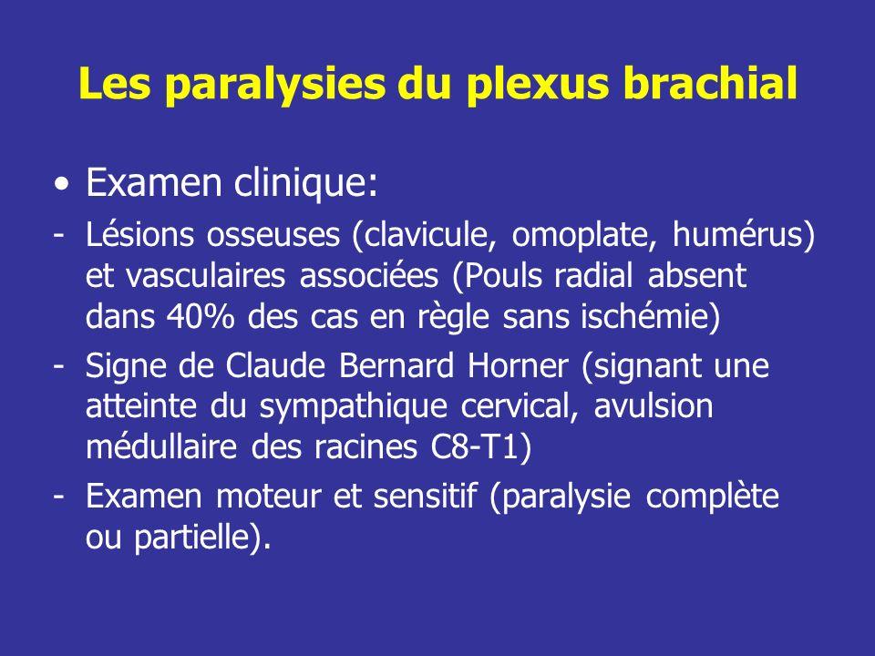 Les paralysies du plexus brachial Examen clinique: -Lésions osseuses (clavicule, omoplate, humérus) et vasculaires associées (Pouls radial absent dans 40% des cas en règle sans ischémie) -Signe de Claude Bernard Horner (signant une atteinte du sympathique cervical, avulsion médullaire des racines C8-T1) -Examen moteur et sensitif (paralysie complète ou partielle).