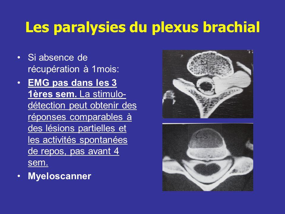 Les paralysies du plexus brachial Traitement