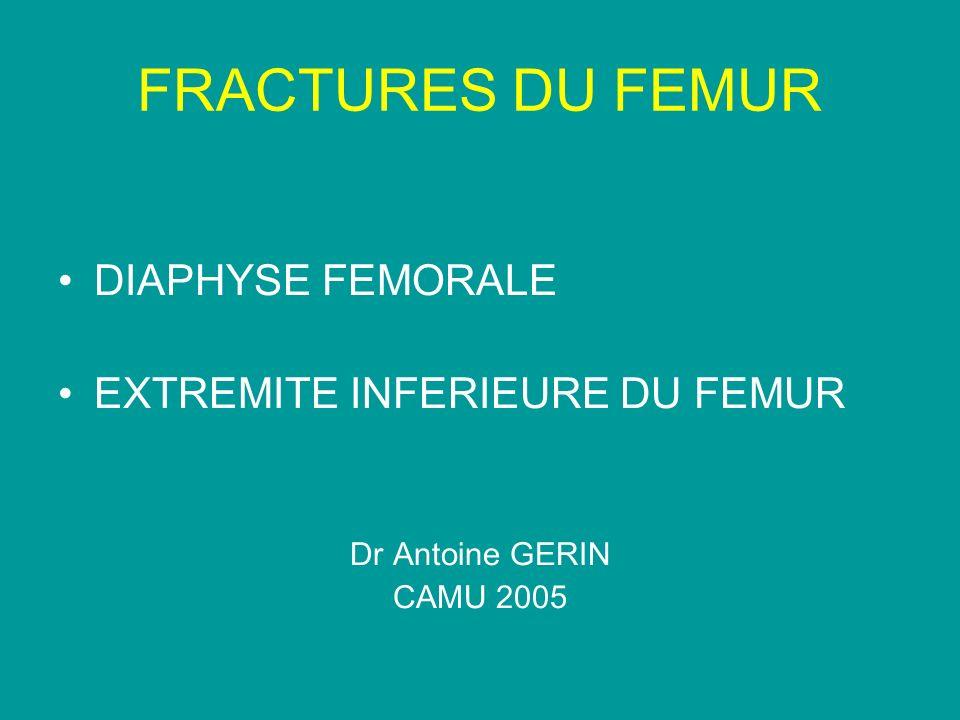 FRACTURES DE LA DIAPHYSE FEMORALE Sujets jeunes AVP, moto, traumatismes à haute Énergie Fracture transversale +++ Fracture fermée +++