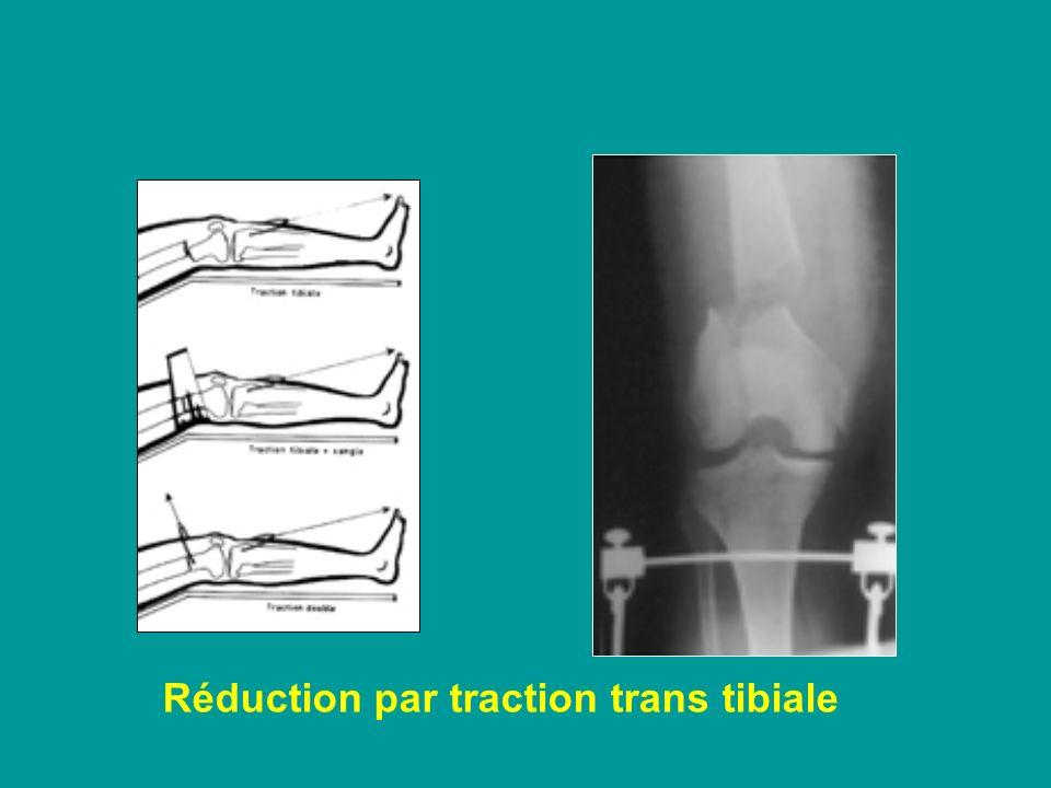 Réduction par traction trans tibiale