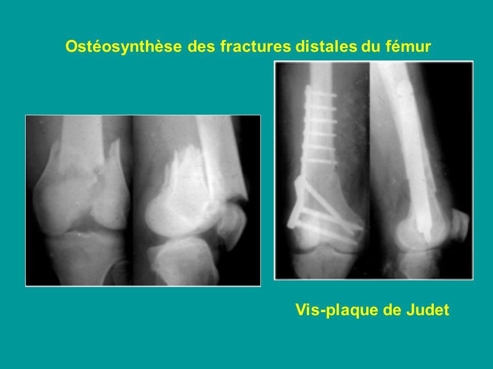 Ostéosynthèse des fractures distales du fémur Vis-plaque de Judet