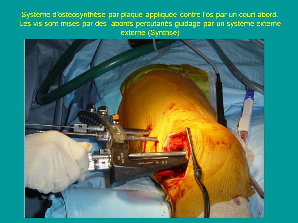 Système dostéosynthèse par plaque appliquée contre los par un court abord. Les vis sont mises par des abords percutanés guidage par un système externe
