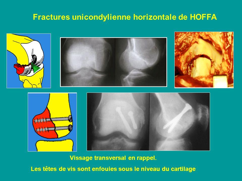 Fractures unicondylienne horizontale de HOFFA Vissage transversal en rappel. Les têtes de vis sont enfouies sous le niveau du cartilage