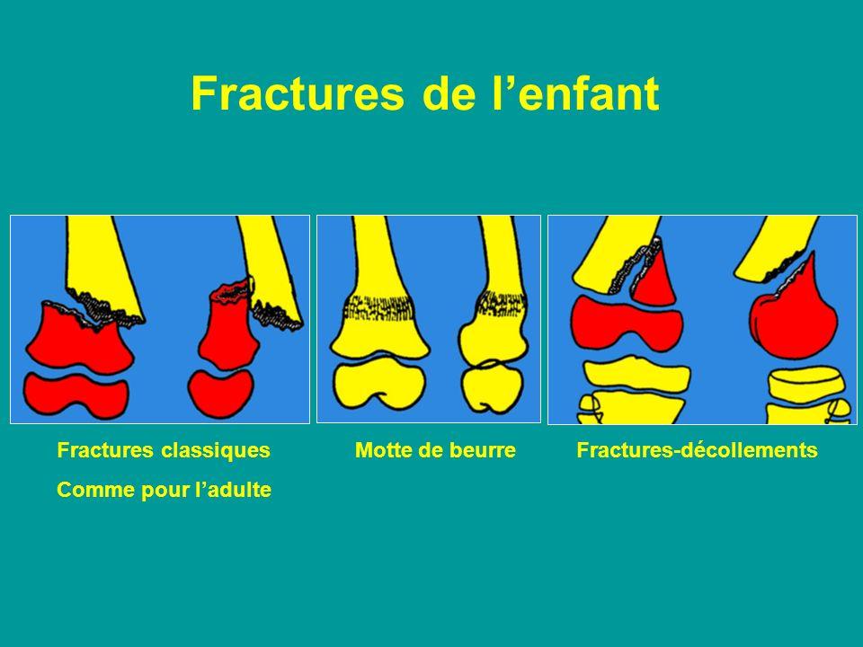 Fractures de lenfant Fractures classiques Motte de beurre Fractures-décollements Comme pour ladulte