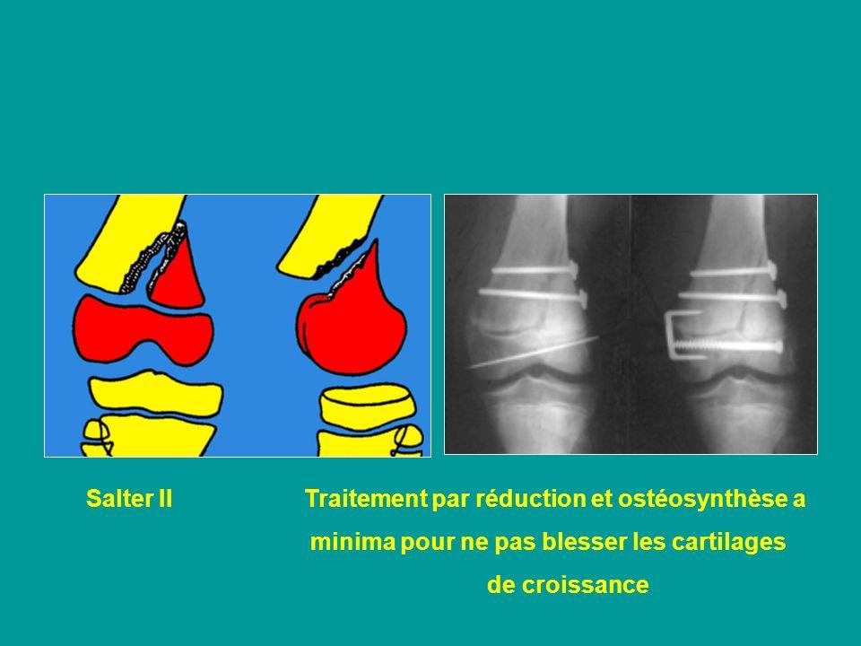 Salter II Traitement par réduction et ostéosynthèse a minima pour ne pas blesser les cartilages de croissance