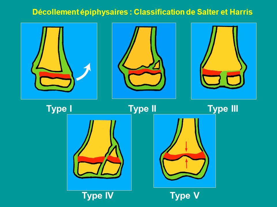 Type I Type II Type III Type IV Type V Décollement épiphysaires : Classification de Salter et Harris