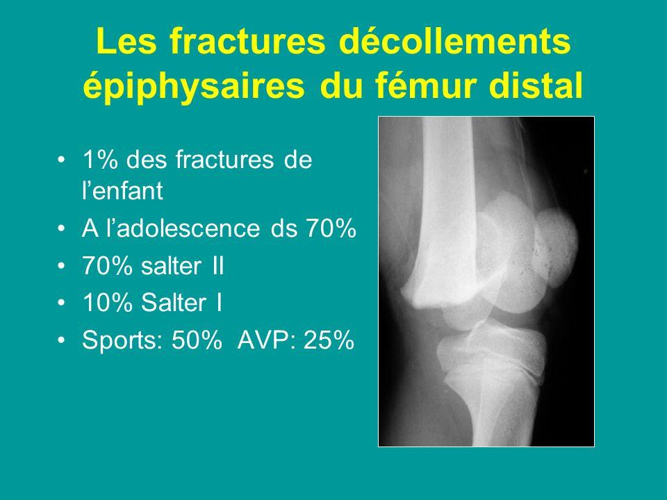 Les fractures décollements épiphysaires du fémur distal 1% des fractures de lenfant A ladolescence ds 70% 70% salter II 10% Salter I Sports: 50% AVP: