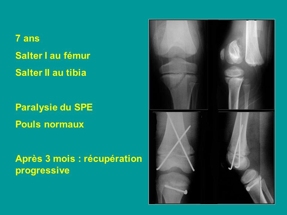 7 ans Salter I au fémur Salter II au tibia Paralysie du SPE Pouls normaux Après 3 mois : récupération progressive