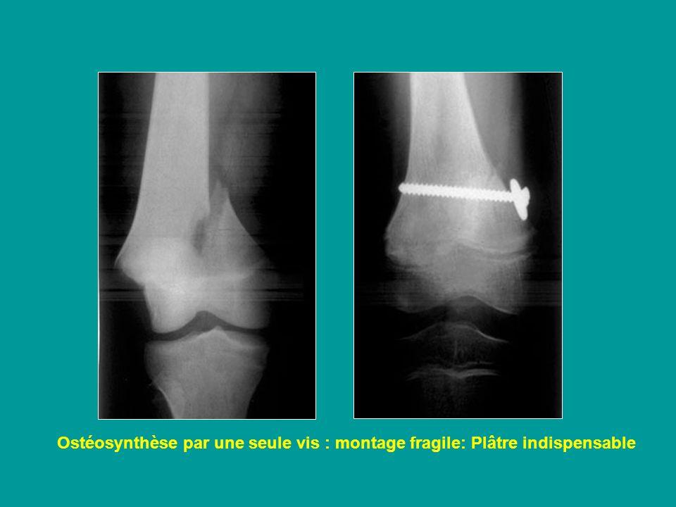 Ostéosynthèse par une seule vis : montage fragile: Plâtre indispensable