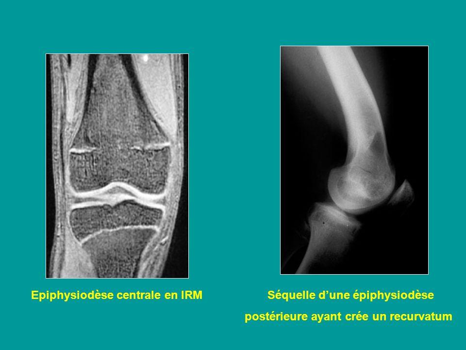Epiphysiodèse centrale en IRM Séquelle dune épiphysiodèse postérieure ayant crée un recurvatum