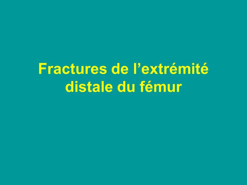 Les fractures décollements épiphysaires du fémur distal Risque initial –Nerveux –Vasculaire Risque secondaire –Épiphysiodèse Doppler ++