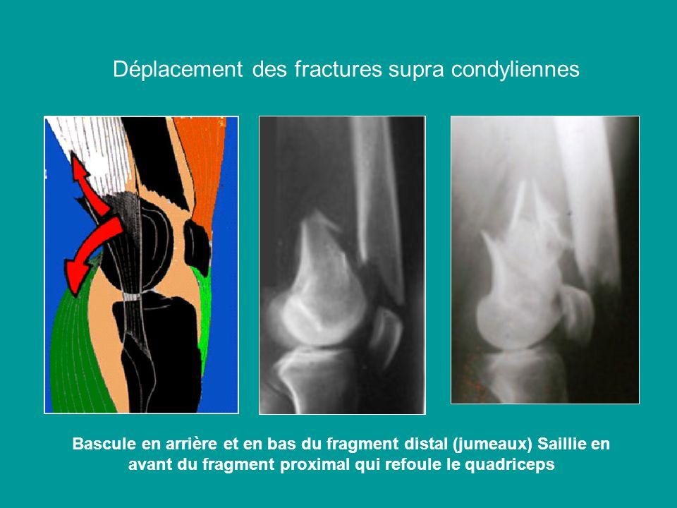 Déplacement des fractures supra condyliennes Bascule en arrière et en bas du fragment distal (jumeaux) Saillie en avant du fragment proximal qui refou