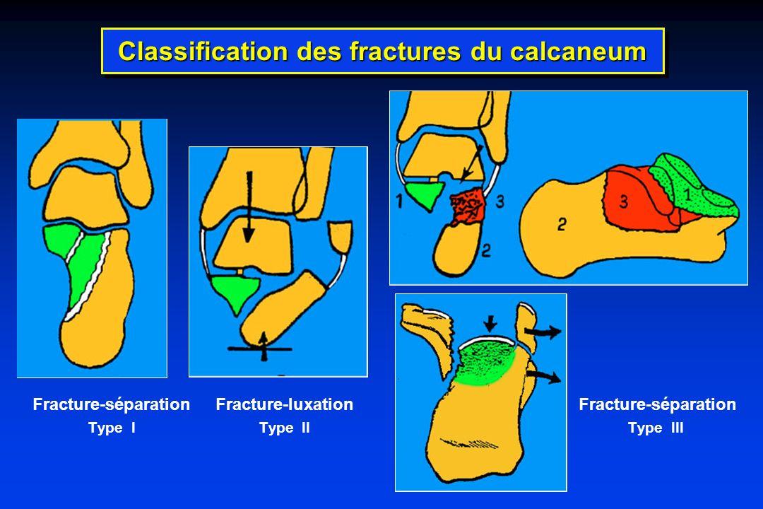 Fracture-séparation Fracture-luxation Fracture-séparation Type I Type II Type III Classification des fractures du calcaneum