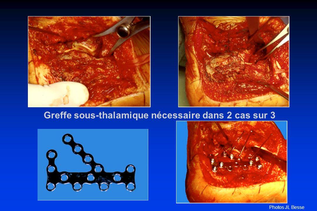 Greffe sous-thalamique nécessaire dans 2 cas sur 3 Photos JL Besse