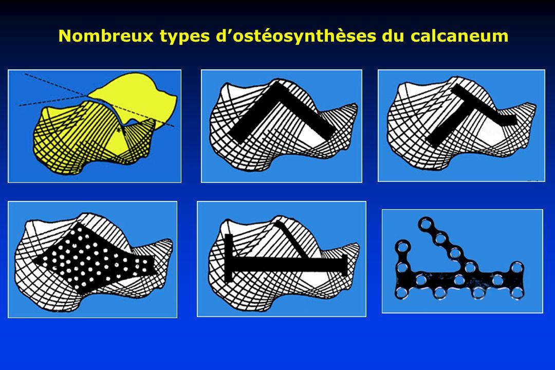 Nombreux types dostéosynthèses du calcaneum
