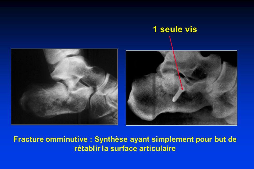 Fracture omminutive : Synthèse ayant simplement pour but de rétablir la surface articulaire 1 seule vis