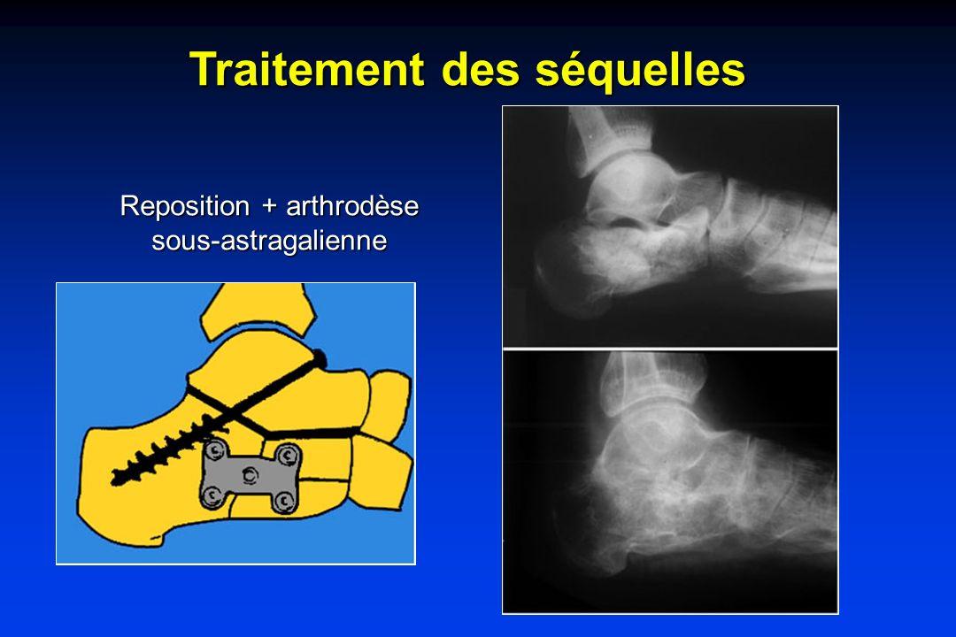 Traitement des séquelles Reposition + arthrodèse sous-astragalienne