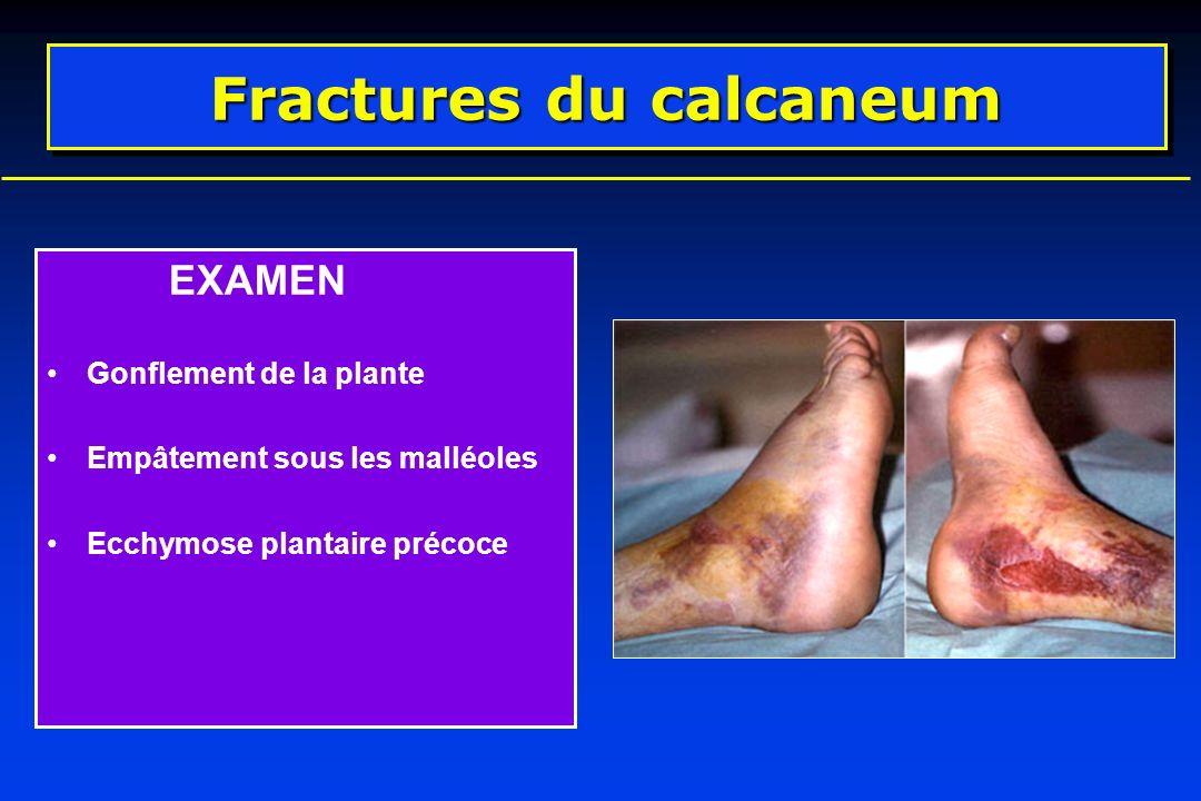 EXAMEN Gonflement de la plante Empâtement sous les malléoles Ecchymose plantaire précoce Fractures du calcaneum