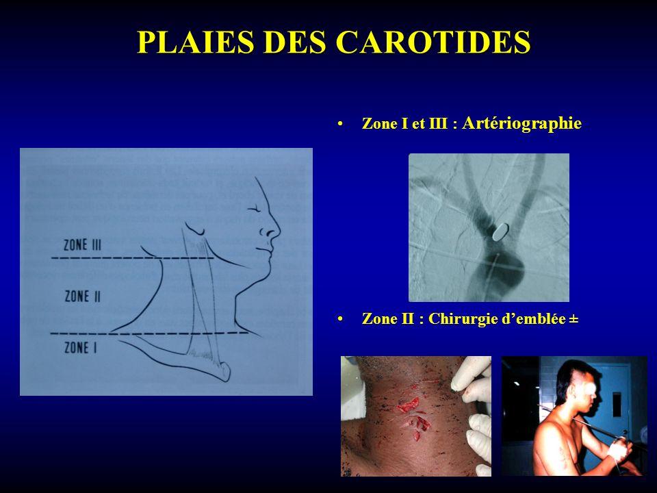 PLAIES DES CAROTIDES Zone I et III : Artériographie Zone II : Chirurgie demblée ±