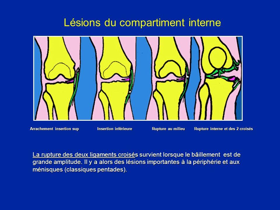 Les ruptures du ligament interne
