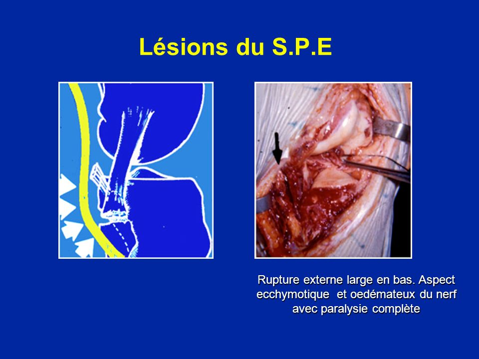 Lésions associées Massif des épines tibiales Tête du péroné Les radiographies simples de face et de profil sont indispensables pour dépister une fracture associée possible d un plateau tibial ou d un condyle.