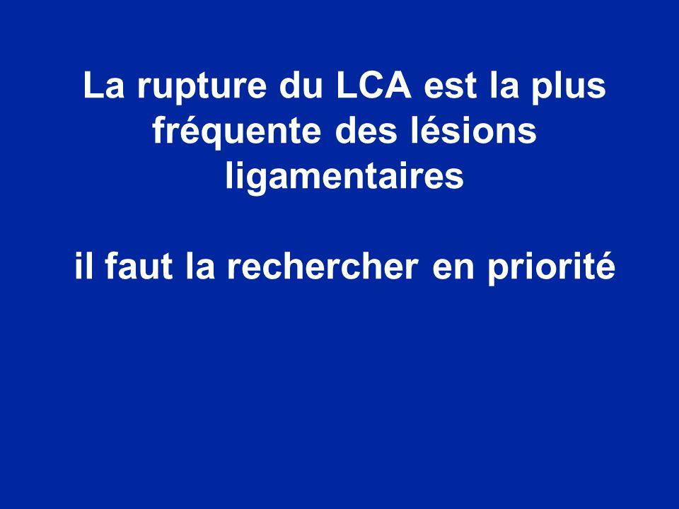 Rupture du LCA LCA normal Vue interne du condyle externe après une coupe sagittale du condyle interne Condyle externe IRM LCA normal Le LCA est parallèle à la ligne de Blumensaat en extension complète