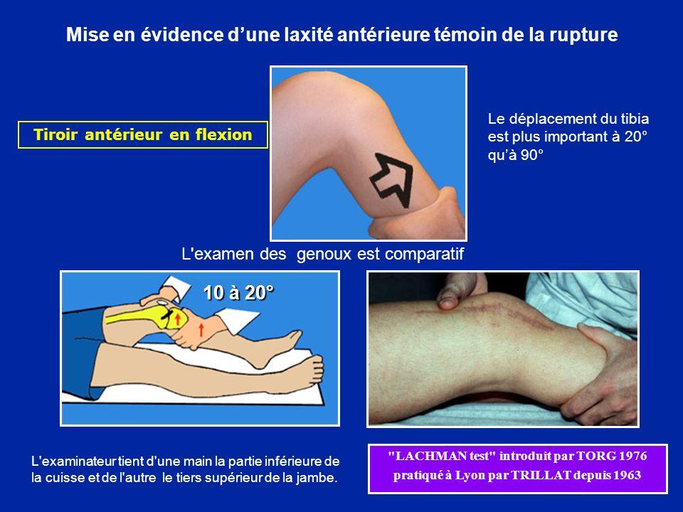 Tiroir postérieur VALFE VARFI Rechercher la laxité des autres ligaments, témoin de ruptures Laxité en Valgus-Flexion Rotation Externe Laxité en Varus-Flexion Rotation Interne Tiroir antérieur