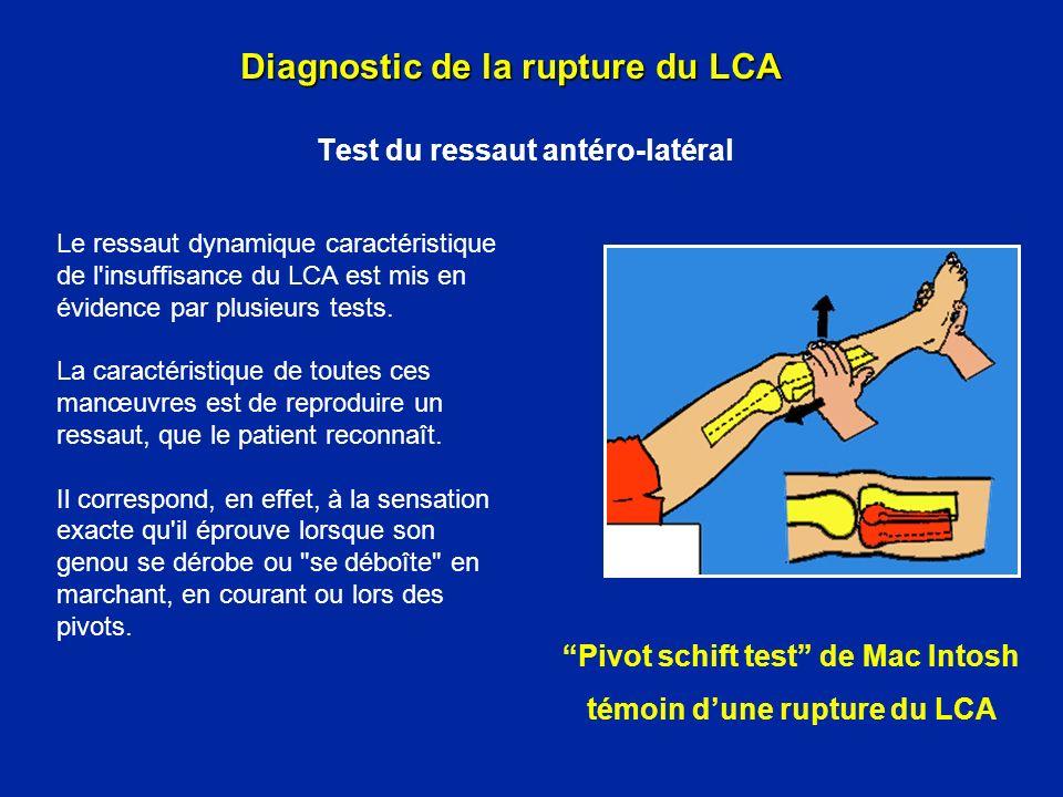 Test de Mac Intosh Diagnostic de la rupture du LCA Test du ressaut antéro-latéral Le patient est sur le dos, décontracté.