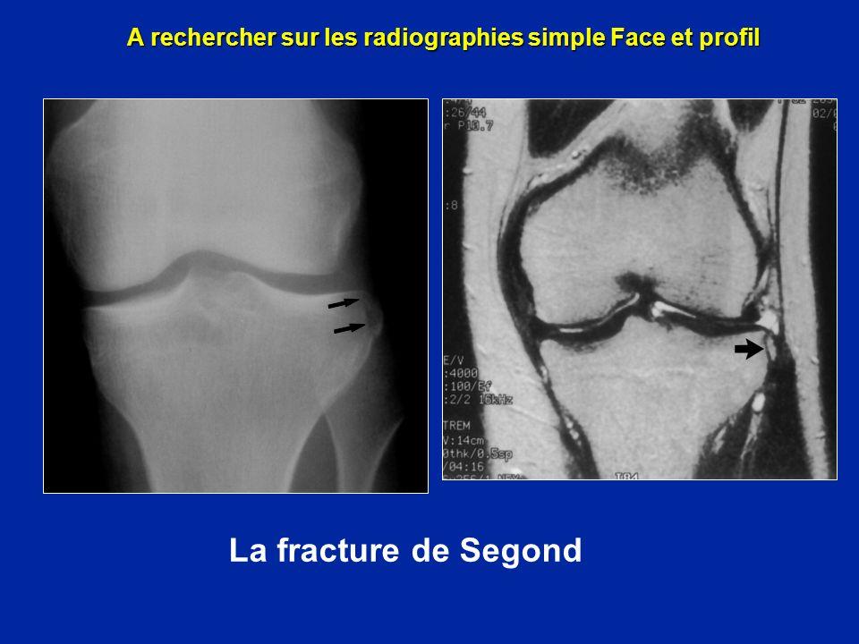 Arrachement de la tête du péroné A rechercher sur les radiographies simple Face et profil
