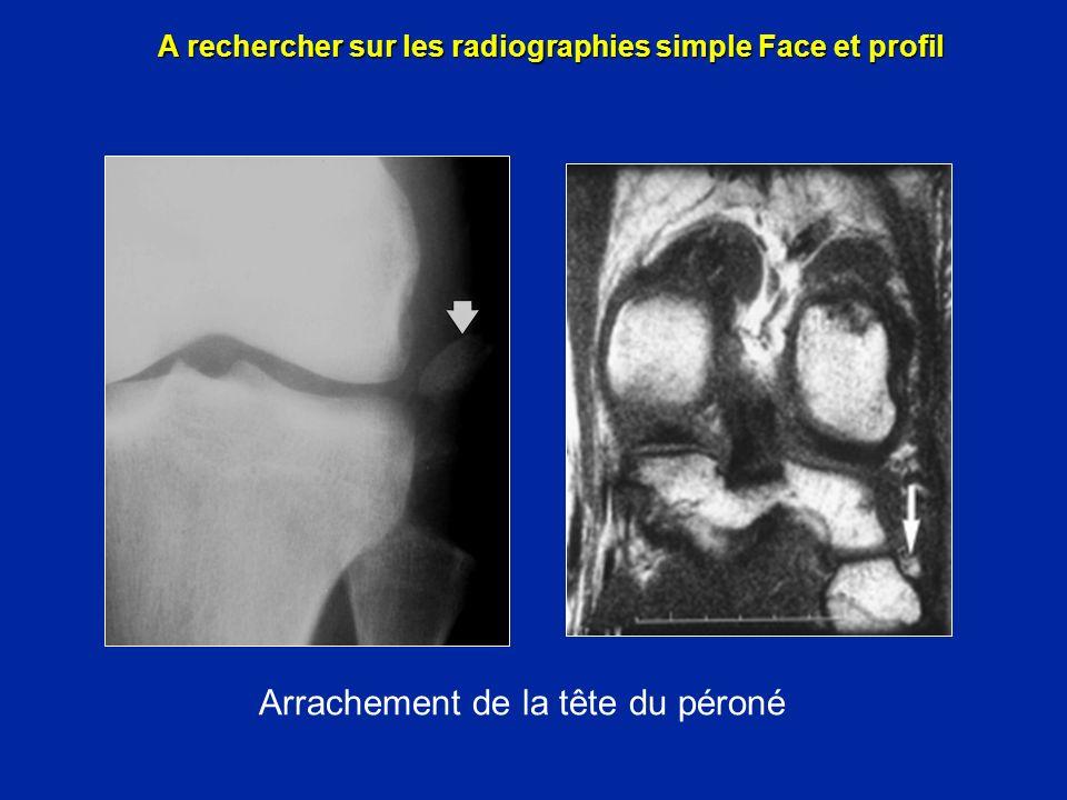 Massif des épines tibiales A rechercher sur les radiographies simple Face et profil IRM IRM