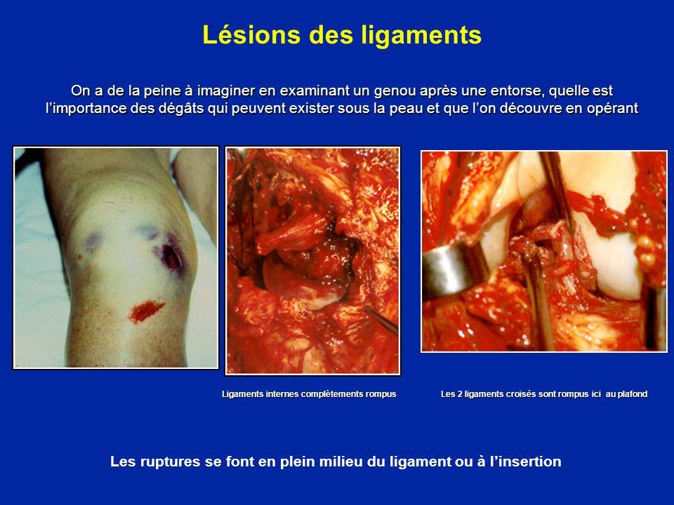 Combinaison de lésions du LCA et du PAPE Documents Y Carillon