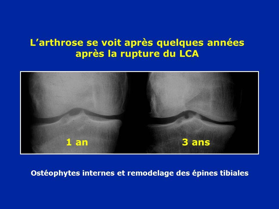 Remodelage des épines tibiales Tiroir antérieur