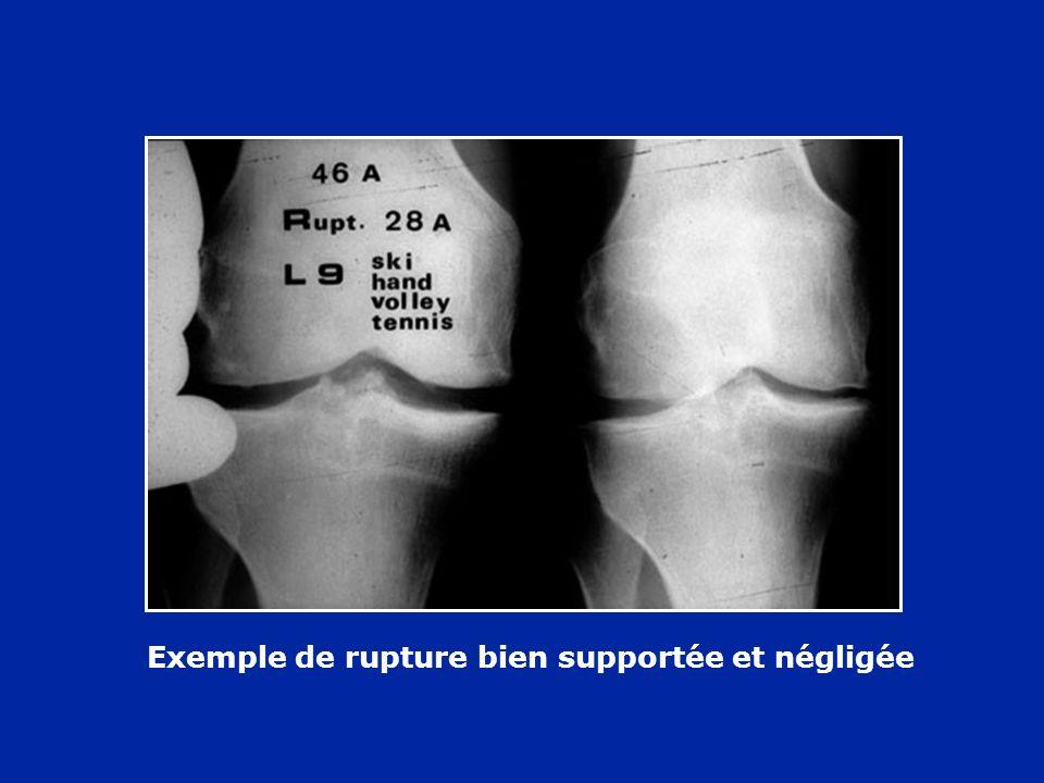Exemple de rupture du LCA bien supportée mais arthrose